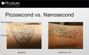 100 picosure laser tattoo removal chicago picosure for Dallas tattoo removal clinic reviews