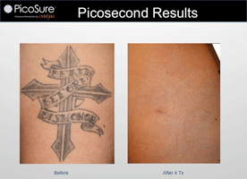 Picosure-4