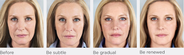 Berkowitz Dermatology 187 Sculptra Treatment